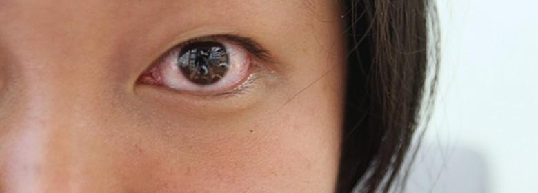 علاج الم العين بعد العدسات