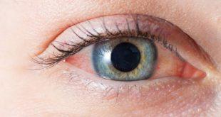 حساسية العين من العدسات اللاصقة