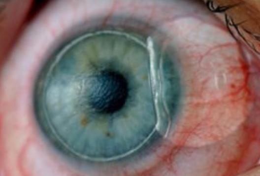 عملية الليزر للعيون لضعف النظر
