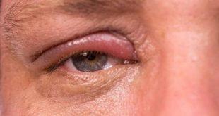علاج التهاب جفن العين العلوي بالاعشاب