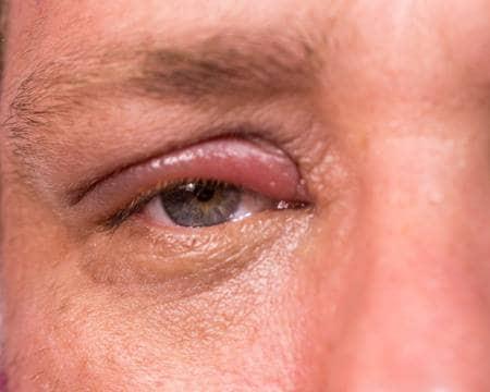 علاج التهاب جفن العين العلوي بالاعشاب تفاصيل هامة جدا عدسات