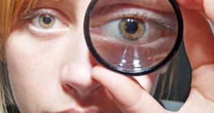 تعرف على أسباب ضعف النظر في العين اليسرى وأهم طرق العلاج