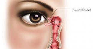 التهاب القناة الدمعية